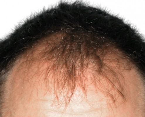cada del cabello