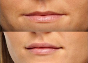 hialuronico labios